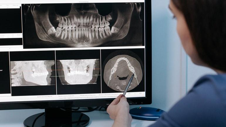 Billede af tænder